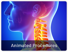 Animated Procedures